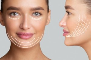 Facelift Training Course